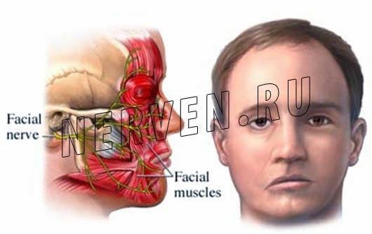 Невропатия (неврит) лицевого